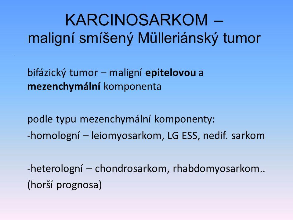 KARCINOSARKOM – maligní smíšený Mülleriánský tumor bifázický tumor – maligní epitelovou a mezenchymální komponenta podle typu mezenchymální komponenty: -homologní – leiomyosarkom, LG ESS, nedif.