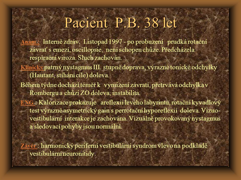 Pacient P.B. 38 let Anam.: Interně zdráv. Listopad 1997 - po probuzení prudká rotační závrať s emezí, oscillopsie, není schopen chůze. Předcházela res