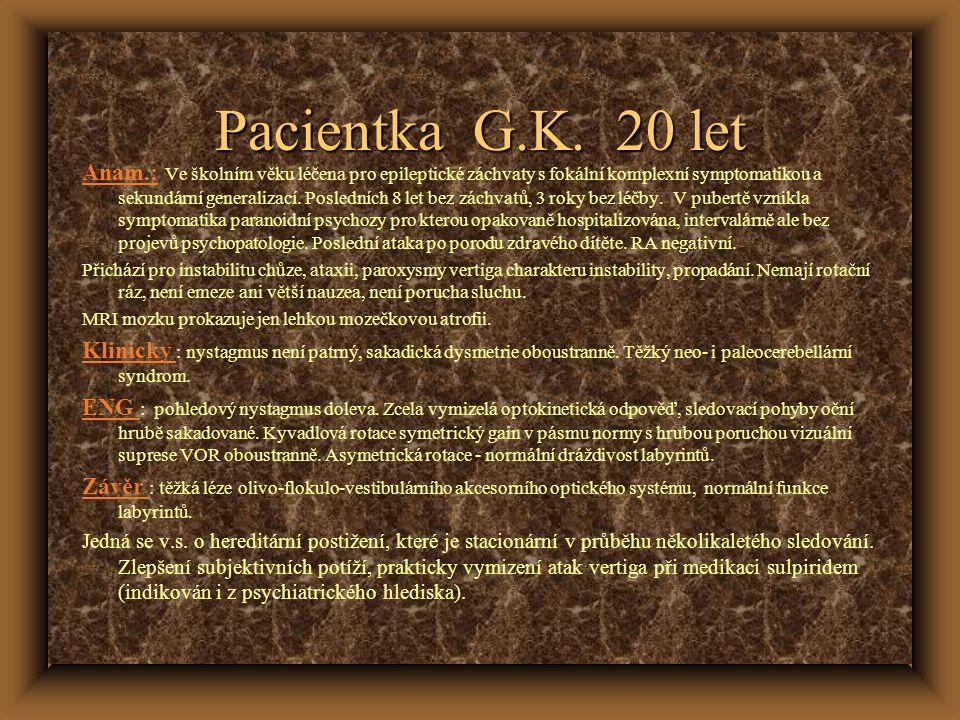 Pacientka G.K. 20 let Anam.: Ve školním věku léčena pro epileptické záchvaty s fokální komplexní symptomatikou a sekundární generalizací. Posledních 8