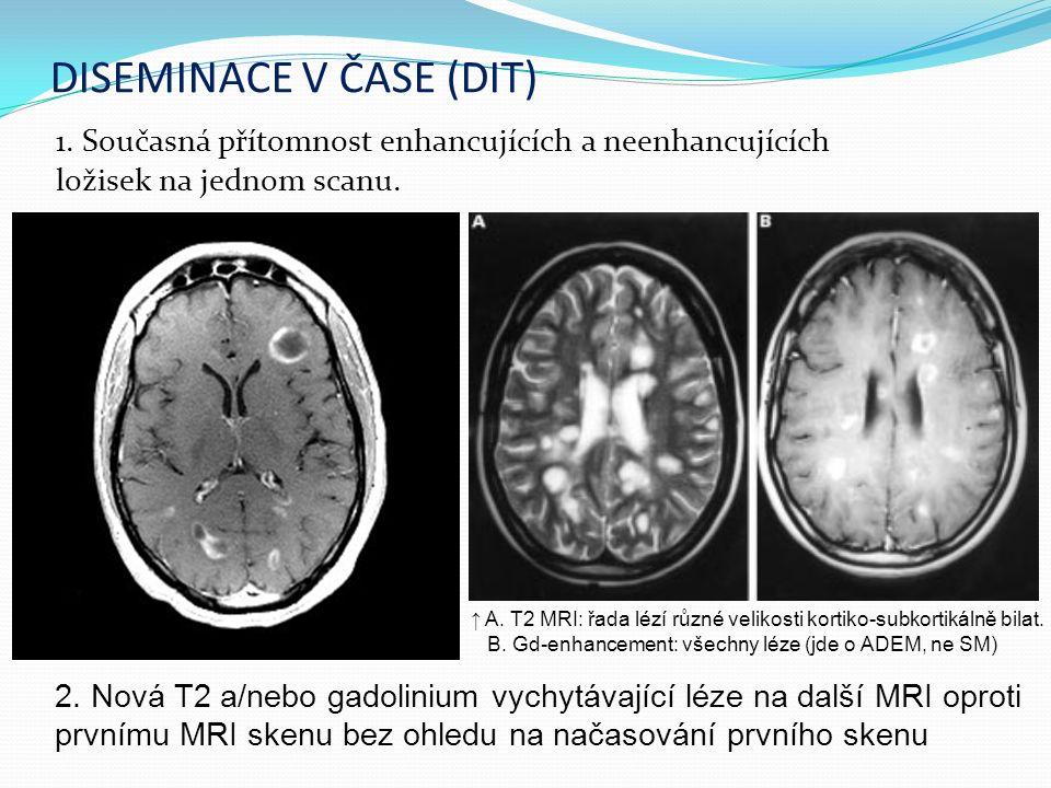 DISEMINACE V ČASE (DIT) 1. Současná přítomnost enhancujících a neenhancujících ložisek na jednom scanu. 2. Nová T2 a/nebo gadolinium vychytávající léz