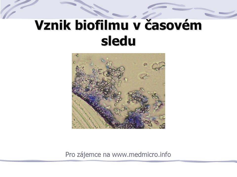 Vznik biofilmu v časovém sledu Pro zájemce na www.medmicro.info