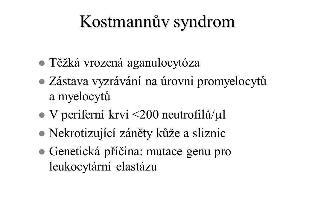 Kostmannův syndrom l Těžká vrozená aganulocytóza l Zástava vyzrávání na úrovni promyelocytů a myelocytů V periferní krvi <200 neutrofilů/  l l Nekrotizující záněty kůže a sliznic l Genetická příčina: mutace genu pro leukocytární elastázu