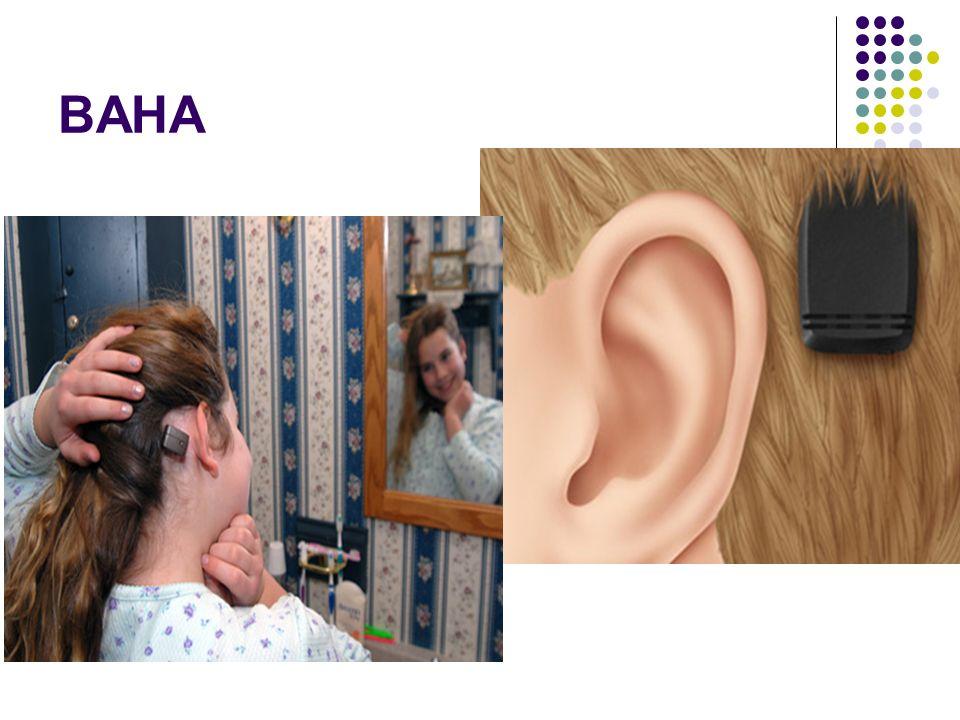 Zhodnocení CROS a BAHA Výhody při použití BAHA Lepší kvalita přijímaného zvuku než CROS Není třeba dalšího sluchadla Výhody při použití CROS Bez operace Možno užívat ihned Lze využít u každého i na zkoušku