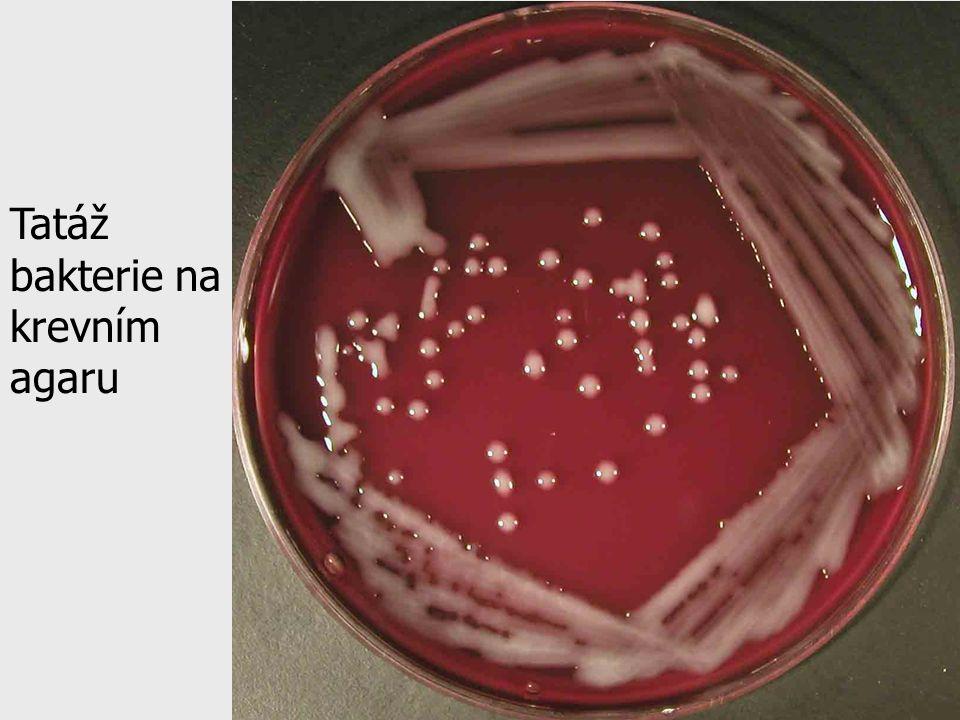 Tatáž bakterie na krevním agaru