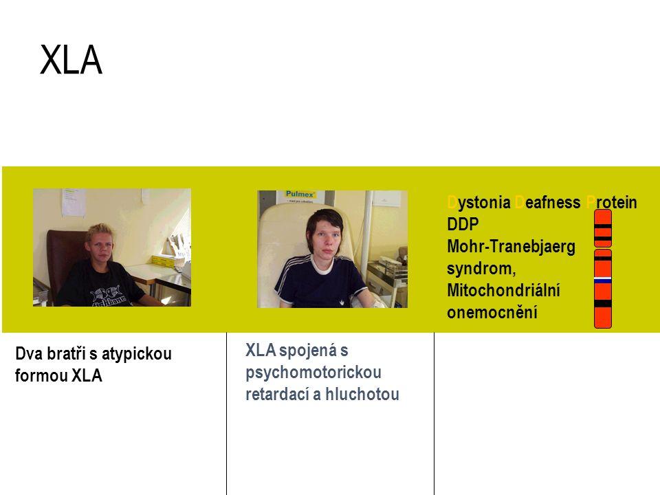 Dva bratři s atypickou formou XLA XLA spojená s psychomotorickou retardací a hluchotou XLA exon 19 delece BTK DDP X 22q 'contiguous deletion syndrome'