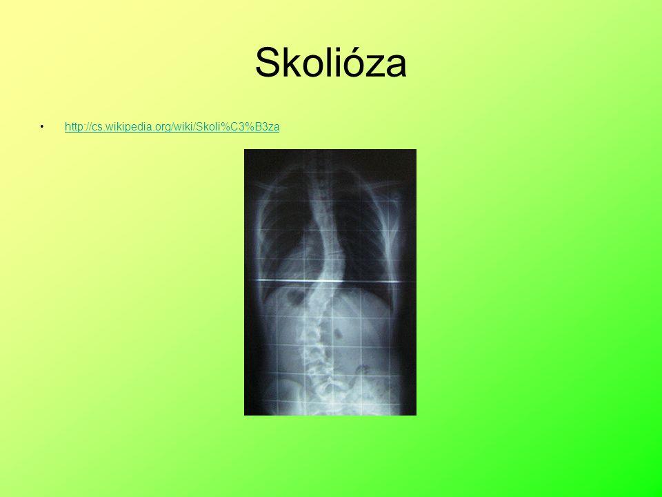 Vady páteře Způsobeny nedostatečným rozvojem svalstva ( chorobami páteře, vadným držením těla, špatným sezením, nošením tašky na 1 rameni) skoliózaVzniká skolióza (vybočení), v dospělosti mohou způsobit závažné problémy)