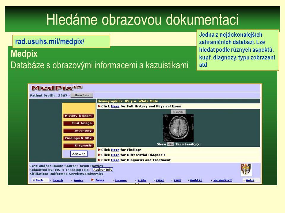 Medpix Databáze s obrazovými informacemi a kazuistikami Hledáme obrazovou dokumentaci rad.usuhs.mil/medpix/ Jedna z nejdokonalejších zahraničních databází.