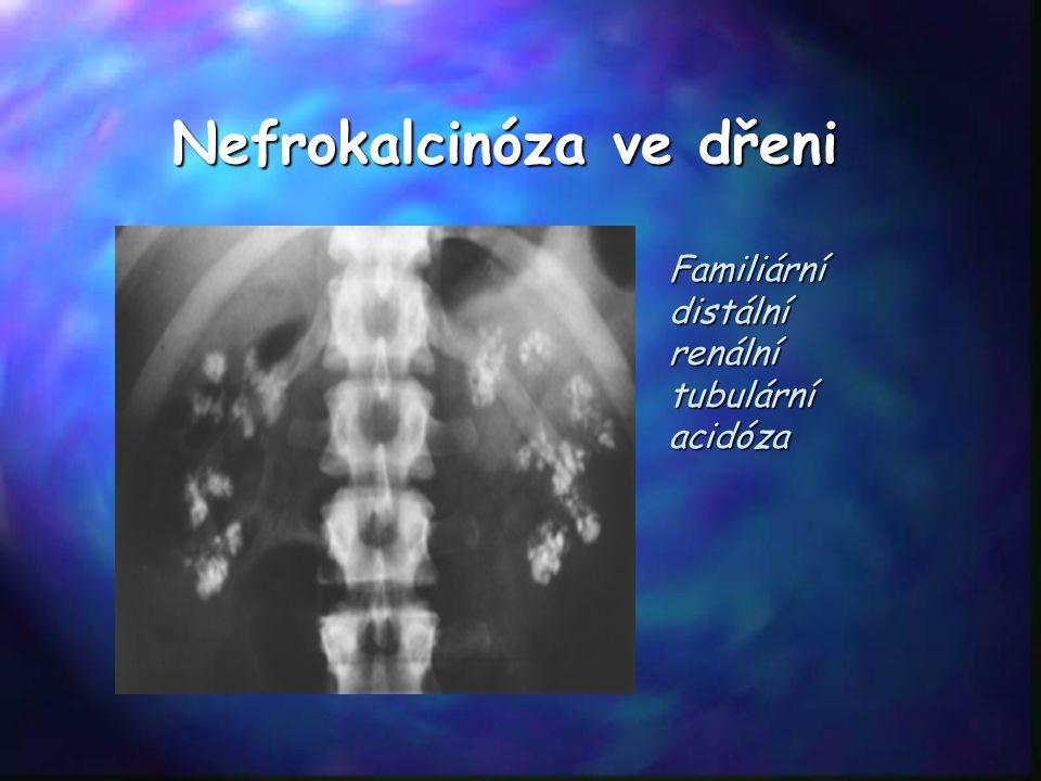 Nefrokalcinóza ve dřeni Familiární distální renální tubulární acidóza