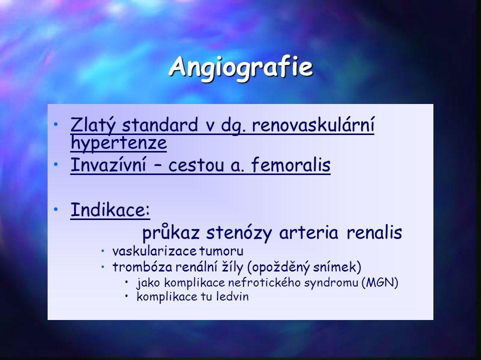 Angiografie Zlatý standard v dg. renovaskulární hypertenze Invazívní – cestou a. femoralis Indikace: průkaz stenózy arteria renalis vaskularizace tumo