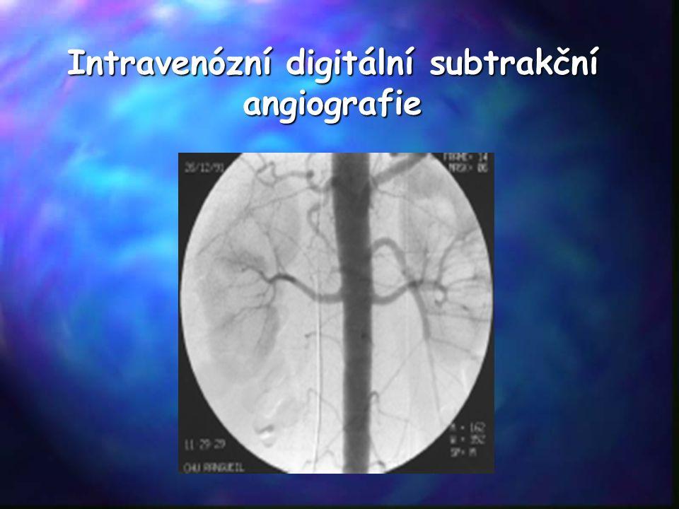 Intravenózní digitální subtrakční angiografie