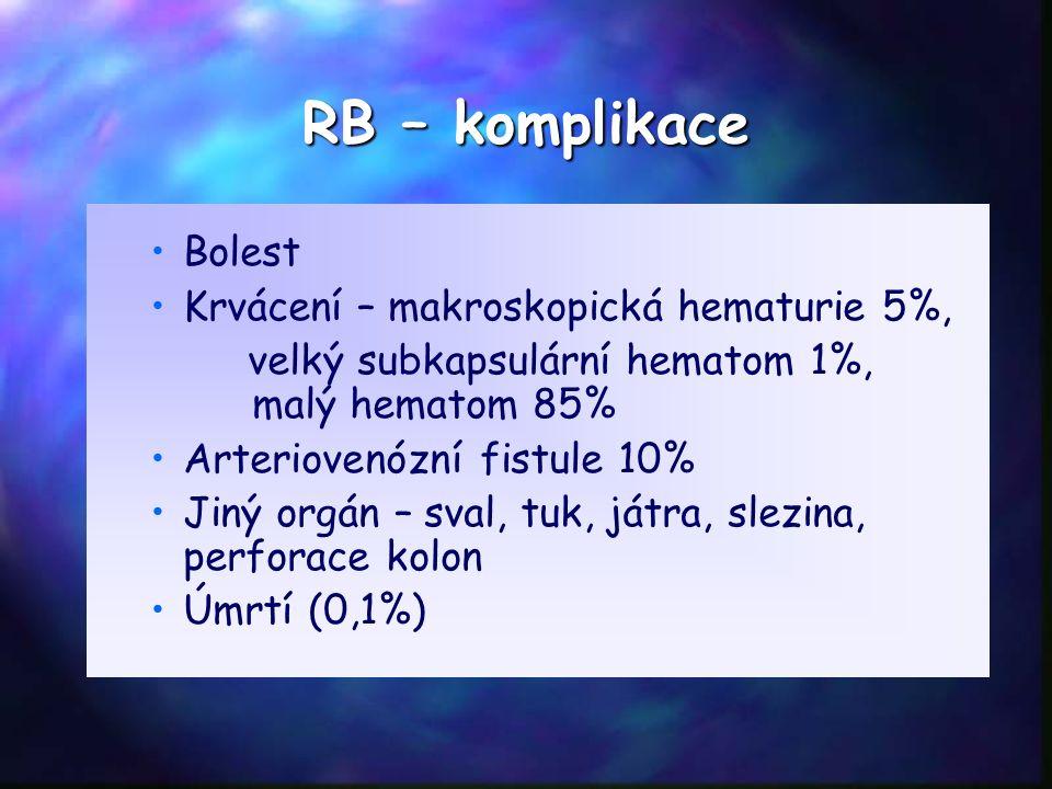 RB – komplikace Bolest Krvácení – makroskopická hematurie 5%, velký subkapsulární hematom 1%, malý hematom 85% Arteriovenózní fistule 10% Jiný orgán –