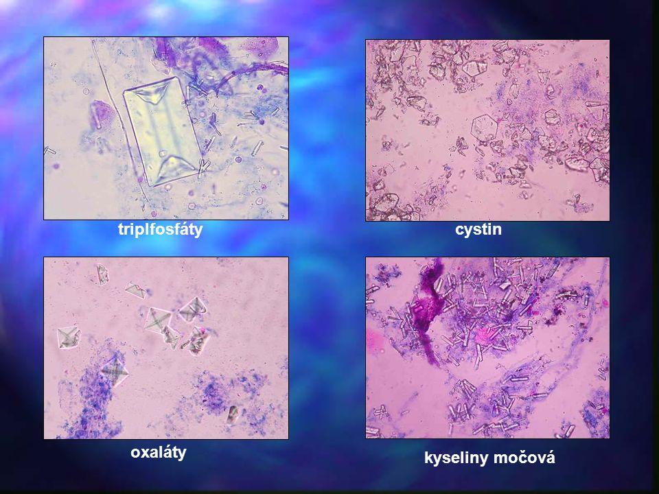 oxaláty kyseliny močová triplfosfátycystin