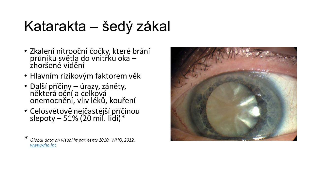 Katarakta – šedý zákal Zkalení nitrooční čočky, které brání průniku světla do vnitřku oka – zhoršené vidění Hlavním rizikovým faktorem věk Další příčiny – úrazy, záněty, některá oční a celková onemocnění, vliv léků, kouření Celosvětově nejčastější příčinou slepoty – 51% (20 mil.