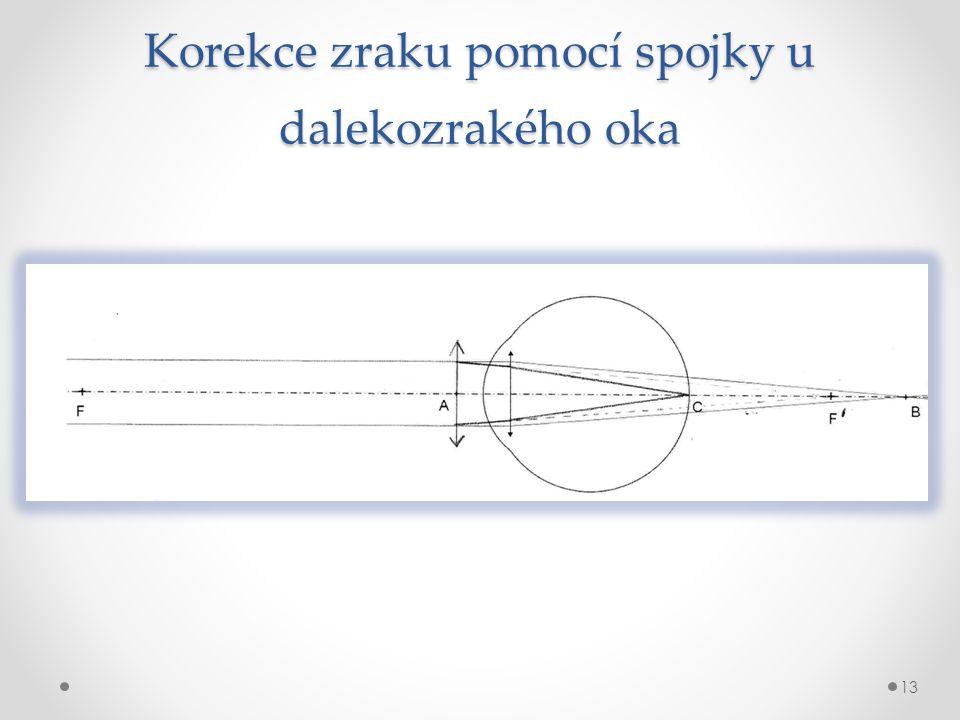 Korekce zraku pomocí spojky u dalekozrakého oka 13