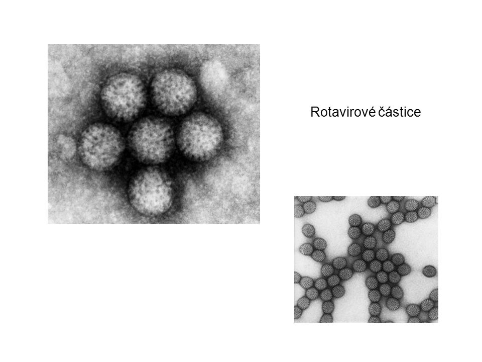 Kaliciviry čeleď Caliciviridae, rod Norovirus, rod Sapovirus Morfologie: neobalené ssRNA-viry, nesegmentované, 27 nm (lat.