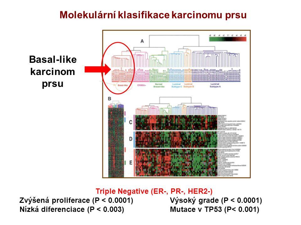 Molekulární klasifikace karcinomu prsu Triple Negative (ER-, PR-, HER2-) Zvýšená proliferace (P < 0.0001) Výsoký grade (P < 0.0001) Nízká diferenciace (P < 0.003)Mutace v TP53 (P< 0.001) Basal-like karcinom prsu