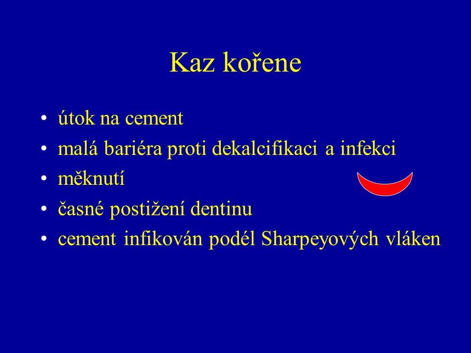 Kaz kořene útok na cement malá bariéra proti dekalcifikaci a infekci měknutí časné postižení dentinu cement infikován podél Sharpeyových vláken