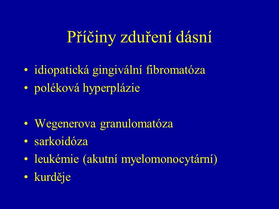 Příčiny zduření dásní idiopatická gingivální fibromatóza poléková hyperplázie Wegenerova granulomatóza sarkoidóza leukémie (akutní myelomonocytární) kurděje