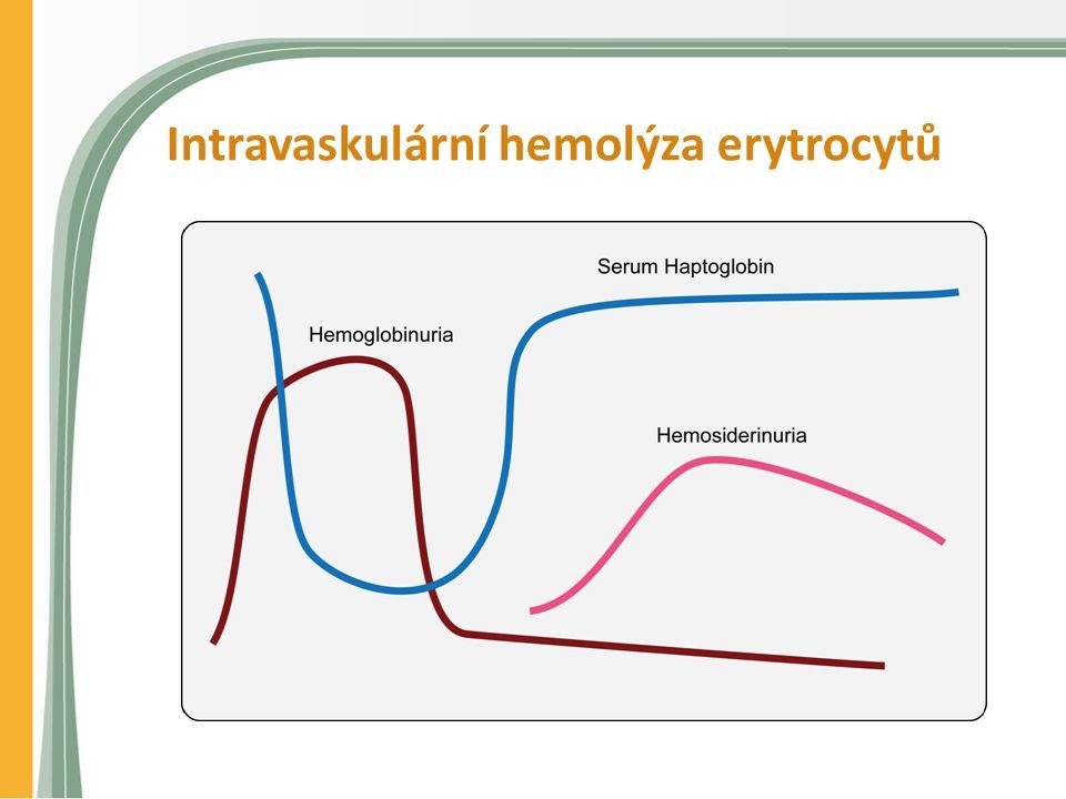 Intravaskulární hemolýza erytrocytů