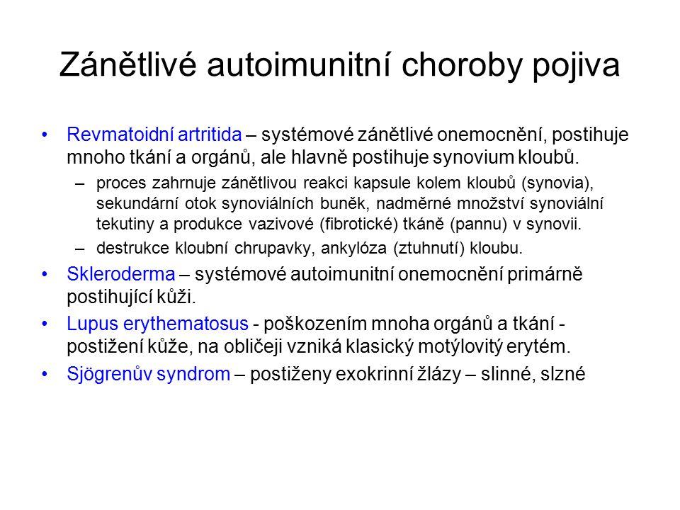Zánětlivé autoimunitní choroby pojiva Revmatoidní artritida – systémové zánětlivé onemocnění, postihuje mnoho tkání a orgánů, ale hlavně postihuje synovium kloubů.