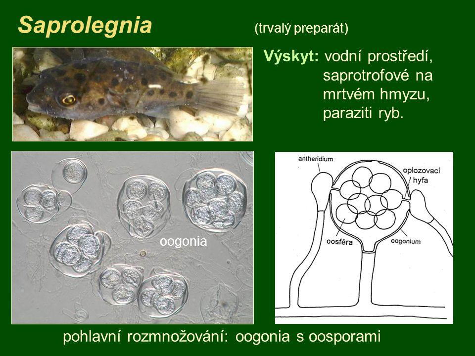 Saprolegnia (trvalý preparát) Výskyt: vodní prostředí, saprotrofové na mrtvém hmyzu, paraziti ryb.