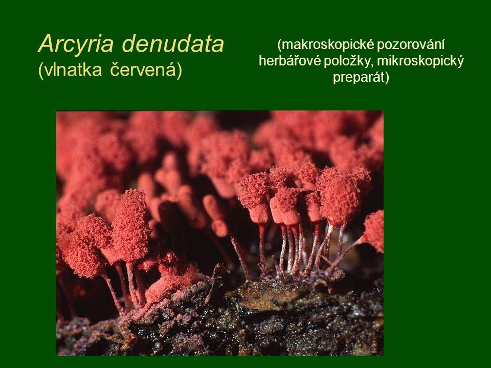 Arcyria denudata (vlnatka červená) (makroskopické pozorování herbářové položky, mikroskopický preparát)