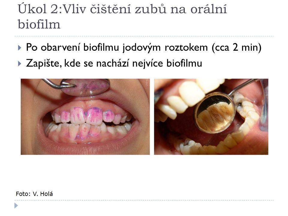 Úkol 2:Vliv čištění zubů na orální biofilm  Po obarvení biofilmu jodovým roztokem (cca 2 min)  Zapište, kde se nachází nejvíce biofilmu