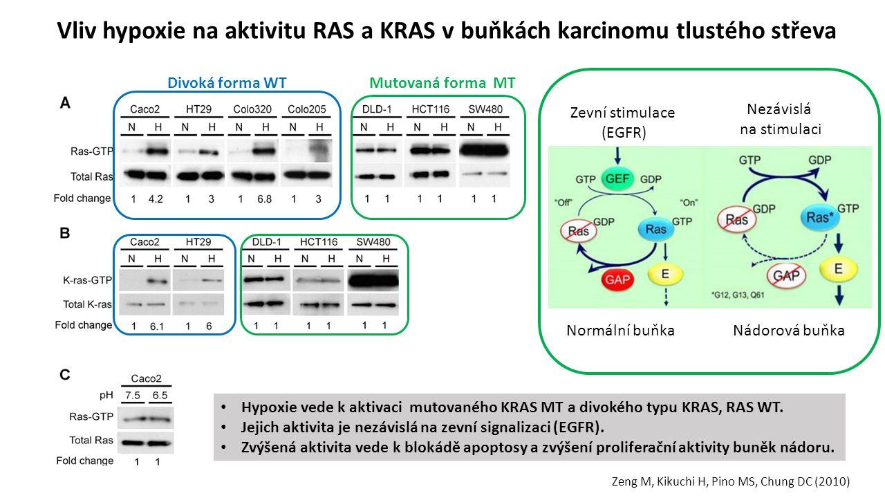 Vliv hypoxie na aktivitu RAS a KRAS v buňkách karcinomu tlustého střeva Divoká forma WTMutovaná forma MT Zeng M, Kikuchi H, Pino MS, Chung DC (2010) Normální buňkaNádorová buňka Zevní stimulace (EGFR) Nezávislá na stimulaci Hypoxie vede k aktivaci mutovaného KRAS MT a divokého typu KRAS, RAS WT.