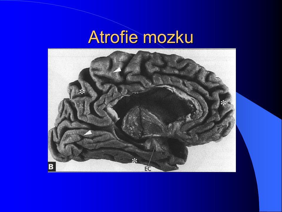 Atrofie mozku
