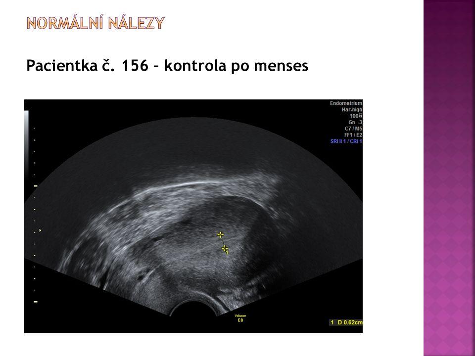 Pacientka č. 156 – kontrola po menses