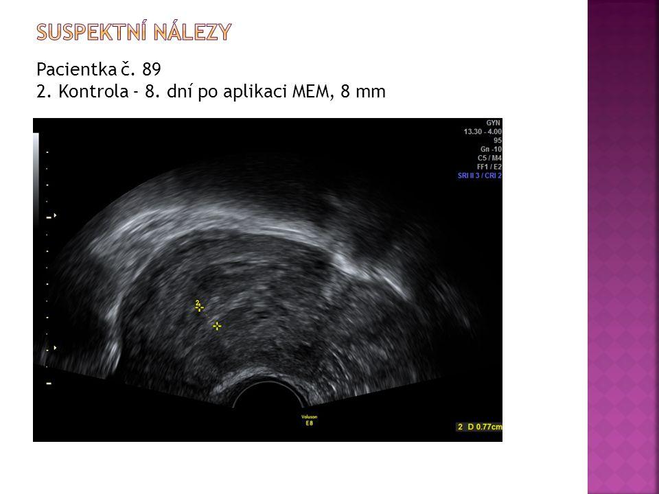 Pacientka č. 89 2. Kontrola - 8. dní po aplikaci MEM, 8 mm