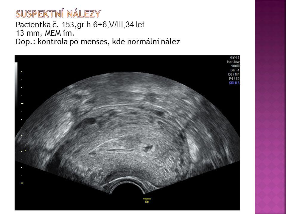 Pacientka č. 153, gr.h.6+6,V/III,34 let 13 mm, MEM im. Dop.: kontrola po menses, kde normální nález