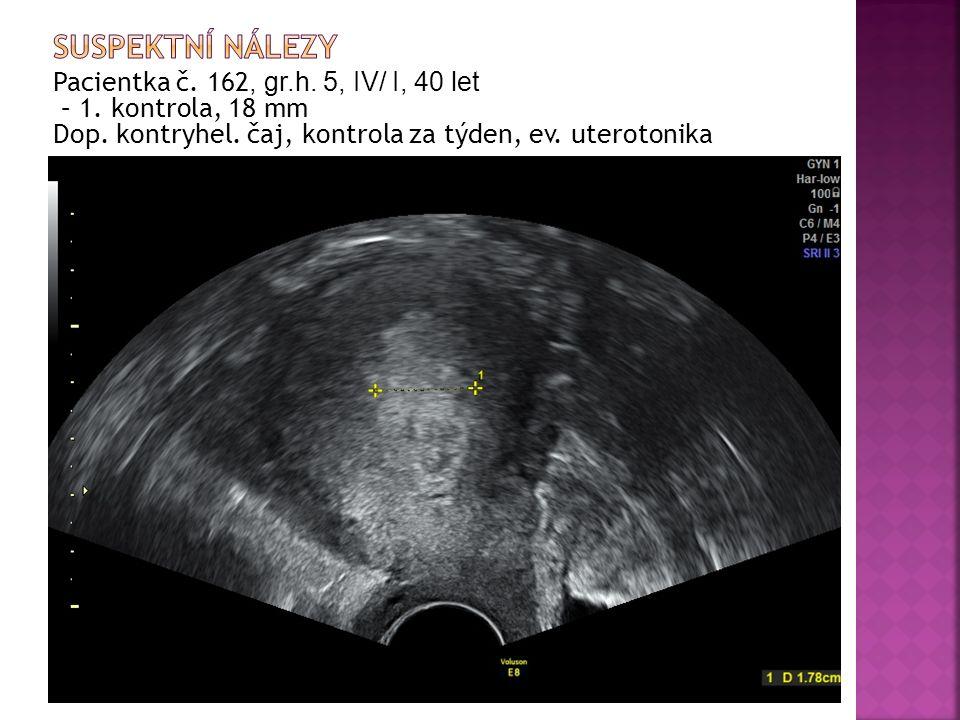 Pacientka č. 162, gr.h. 5, IV/ I, 40 let – 1. kontrola, 18 mm Dop.
