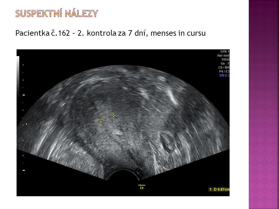 Pacientka č.162 – 2. kontrola za 7 dní, menses in cursu