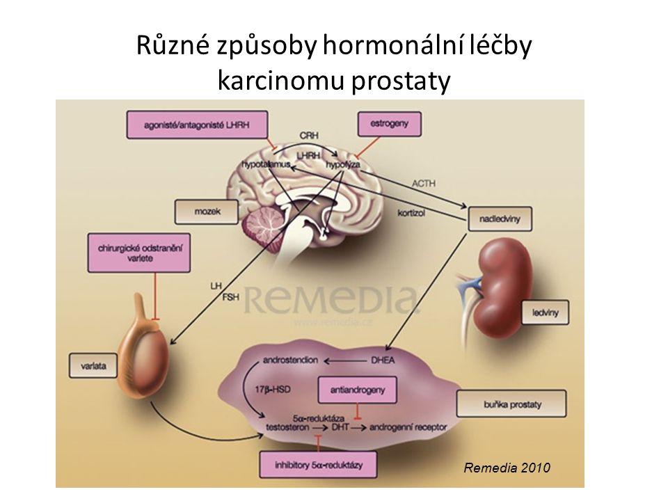 Různé způsoby hormonální léčby karcinomu prostaty Remedia 2010