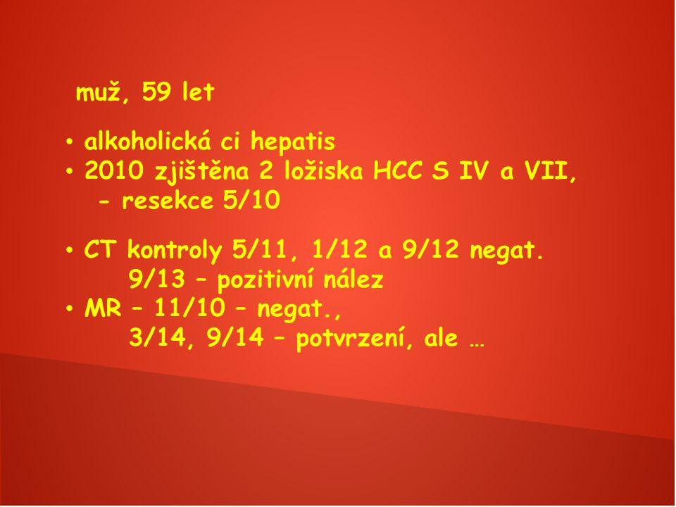 muž, 59 let alkoholická ci hepatis 2010 zjištěna 2 ložiska HCC S IV a VII, - resekce 5/10 CT kontroly 5/11, 1/12 a 9/12 negat.