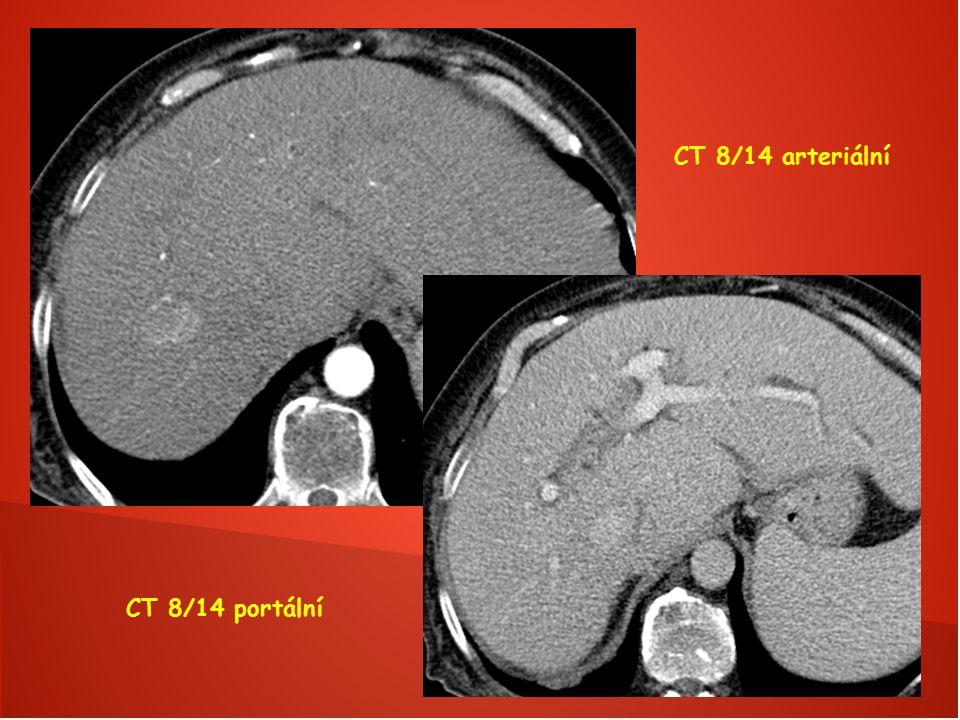 CT 8/14 arteriální CT 8/14 portální