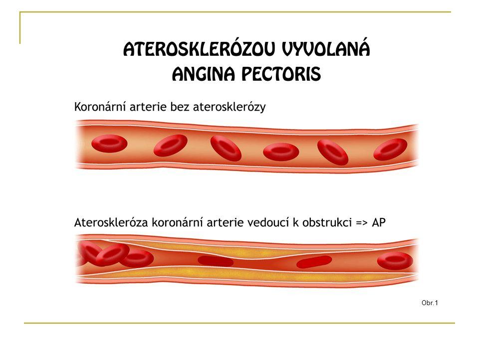 Spoj související pojmy - řešení Hypertenze Myokard Ateroskleróza Infarkt myokardu Svalovina srdeční Kornatění tepen Vysoký krevní tlak Srdeční mrtvice
