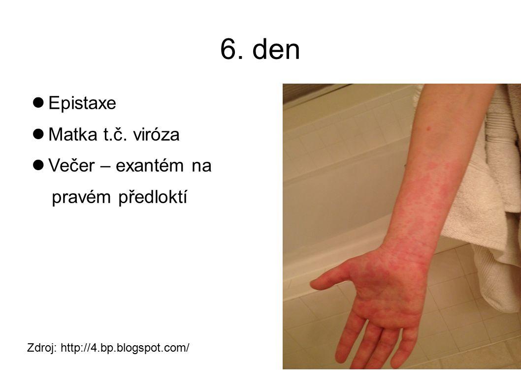 6. den Epistaxe Matka t.č.