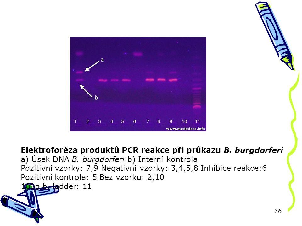 36 Elektroforéza produktů PCR reakce při průkazu B.