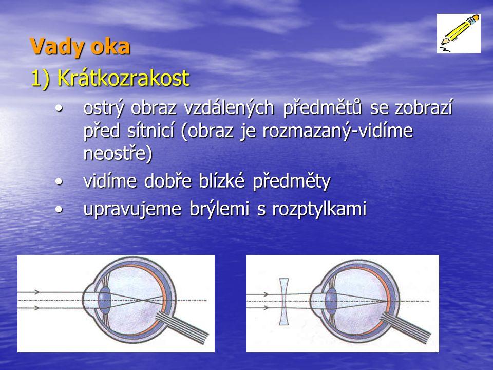 Vady oka 1) Krátkozrakost ostrý obraz vzdálených předmětů se zobrazí před sítnicí (obraz je rozmazaný-vidíme neostře)ostrý obraz vzdálených předmětů se zobrazí před sítnicí (obraz je rozmazaný-vidíme neostře) vidíme dobře blízké předmětyvidíme dobře blízké předměty upravujeme brýlemi s rozptylkamiupravujeme brýlemi s rozptylkami