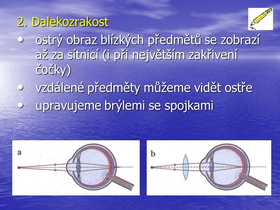 2. Dalekozrakost ostrý obraz blízkých předmětů se zobrazí až za sítnicí (i při největším zakřivení čočky) ostrý obraz blízkých předmětů se zobrazí až