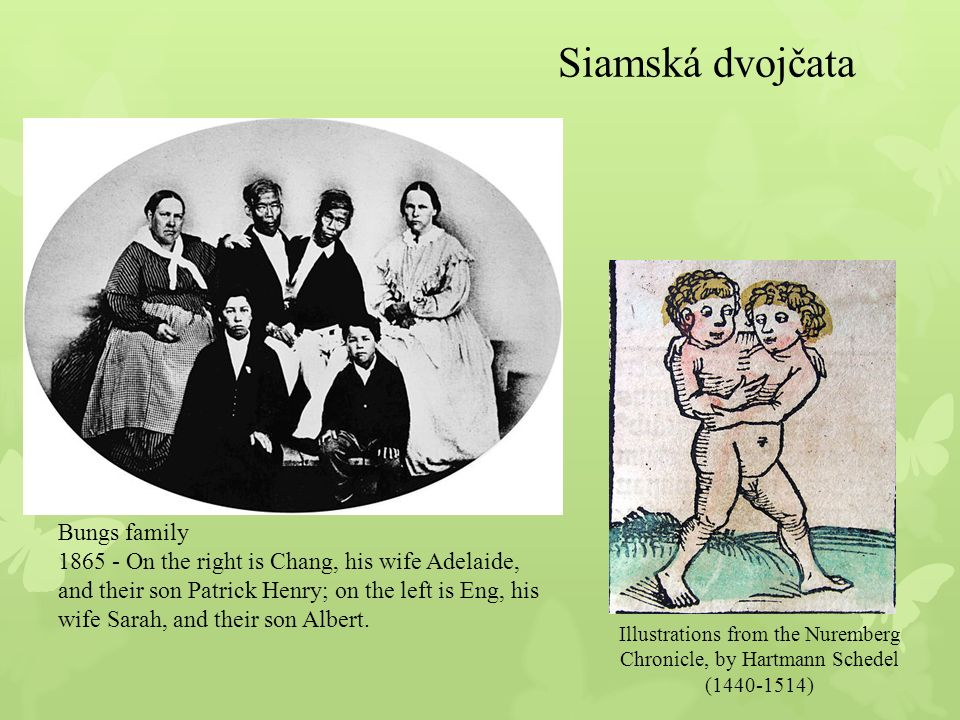 Nejznámější siamská dvojčata z území Čech jsou Josefína a Růžena Blažkovy, které žily v letech 1878 až 1922.Josefína a Růžena Blažkovy Poslední případ narození živých siamských dvojčat je z 3.