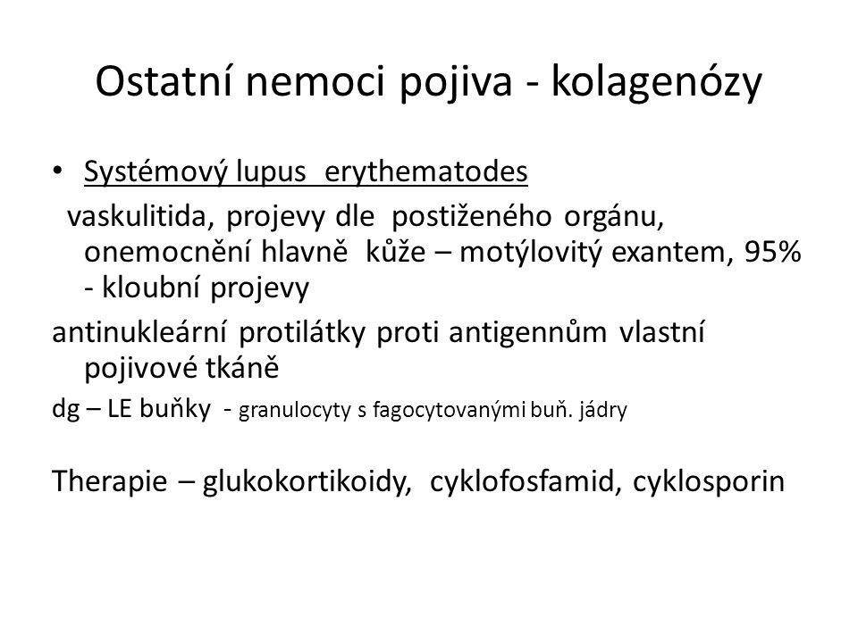 Ostatní nemoci pojiva - kolagenózy Systémový lupus erythematodes vaskulitida, projevy dle postiženého orgánu, onemocnění hlavně kůže – motýlovitý exan