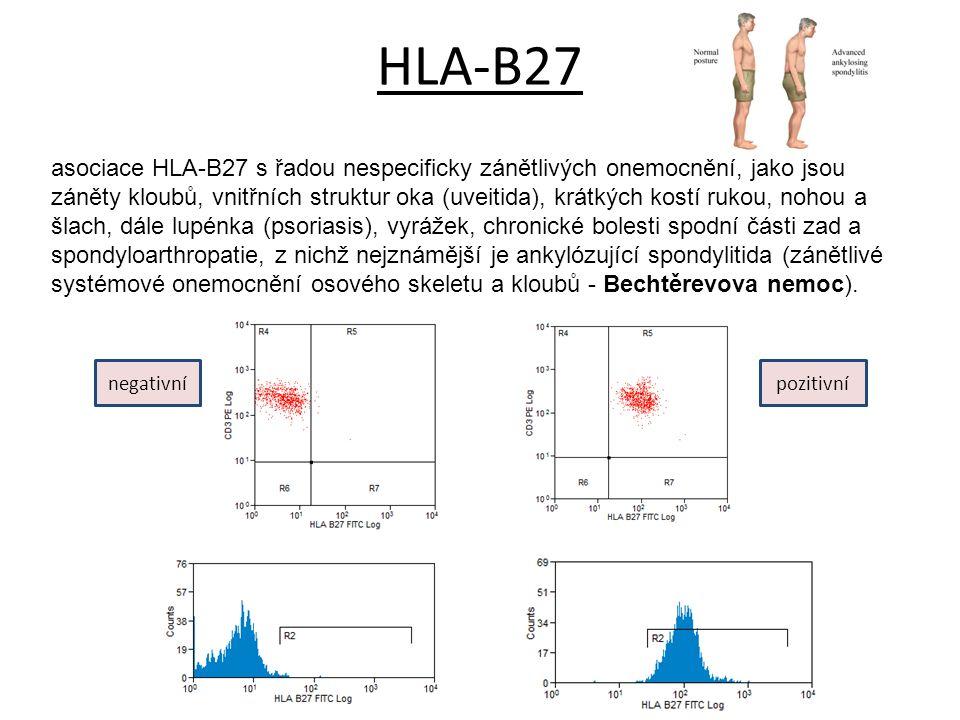 HLA-B27 asociace HLA-B27 s řadou nespecificky zánětlivých onemocnění, jako jsou záněty kloubů, vnitřních struktur oka (uveitida), krátkých kostí rukou, nohou a šlach, dále lupénka (psoriasis), vyrážek, chronické bolesti spodní části zad a spondyloarthropatie, z nichž nejznámější je ankylózující spondylitida (zánětlivé systémové onemocnění osového skeletu a kloubů - Bechtěrevova nemoc).