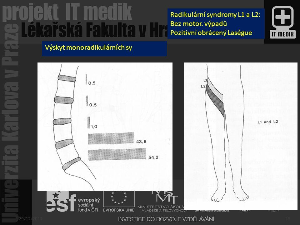 Výskyt monoradikulárních sy Radikulární syndromy L1 a L2: Bez motor. výpadů Pozitivní obrácený Laségue 29/12/201118