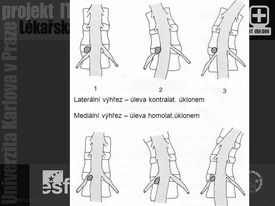 Laterální výhřez – úleva kontralat. úklonem Mediální výhřez – úleva homolat.úklonem 29/12/201128
