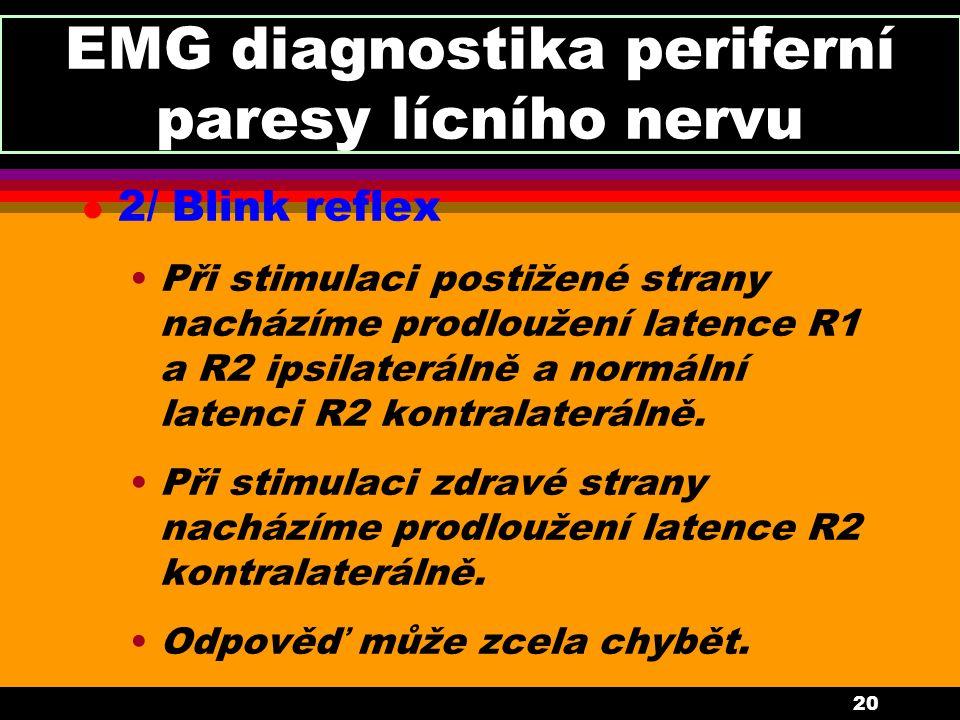 20 EMG diagnostika periferní paresy lícního nervu l 2/ Blink reflex Při stimulaci postižené strany nacházíme prodloužení latence R1 a R2 ipsilaterálně