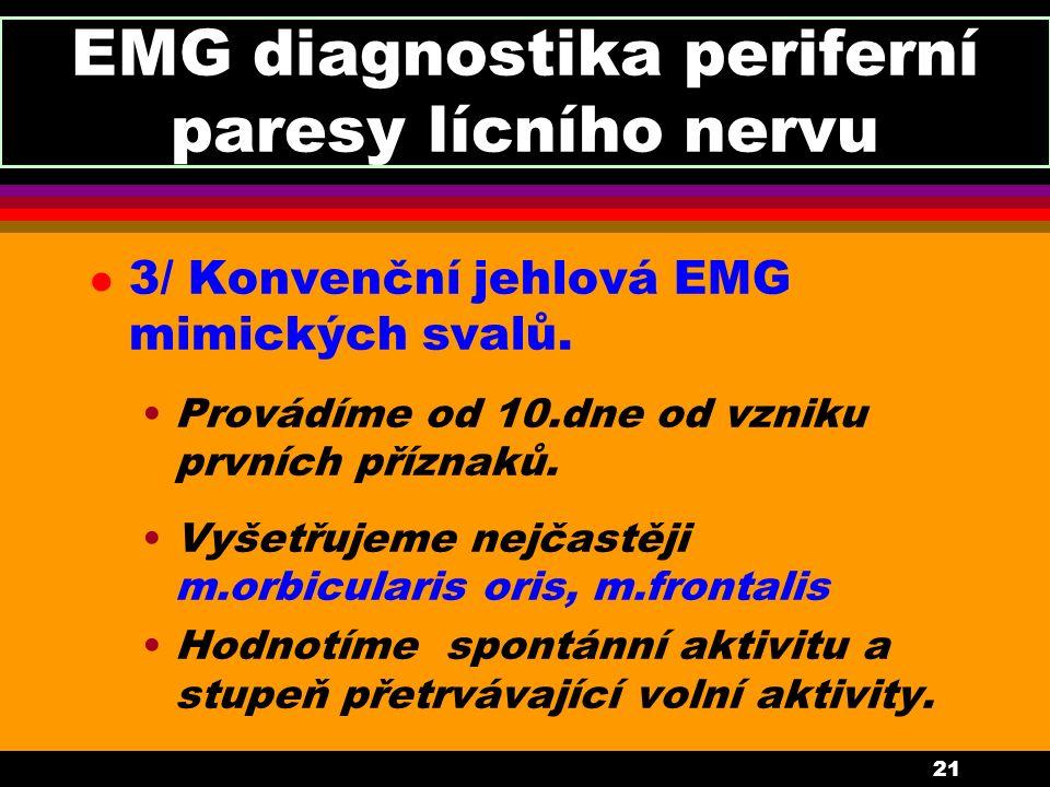 21 EMG diagnostika periferní paresy lícního nervu l 3/ Konvenční jehlová EMG mimických svalů. Provádíme od 10.dne od vzniku prvních příznaků. Vyšetřuj