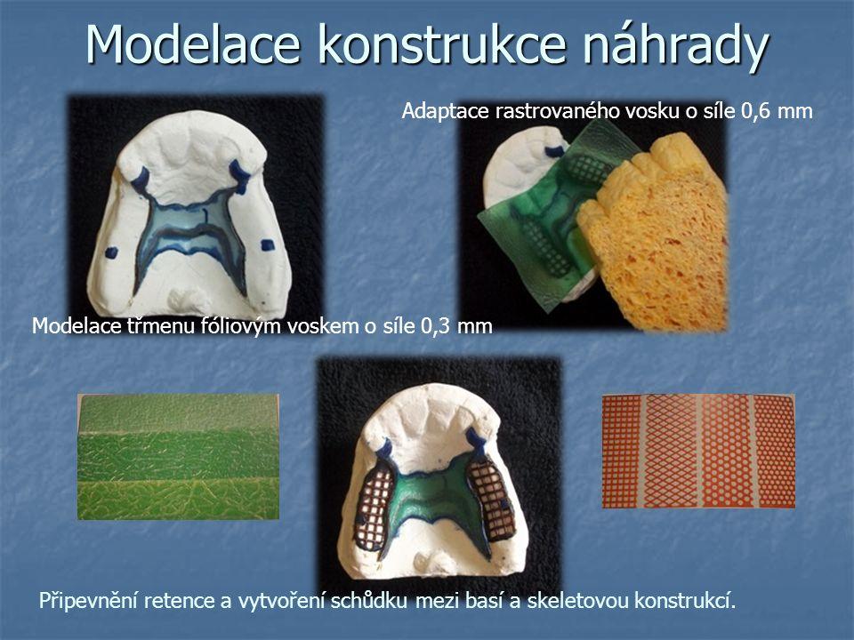 Modelace konstrukce náhrady Adaptace rastrovaného vosku o síle 0,6 mm Modelace třmenu fóliovým voskem o síle 0,3 mm Připevnění retence a vytvoření schůdku mezi basí a skeletovou konstrukcí.